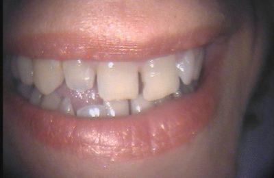 Odontoiatria estetica: caso 1 - Prima © Dott. Alessandro Negri