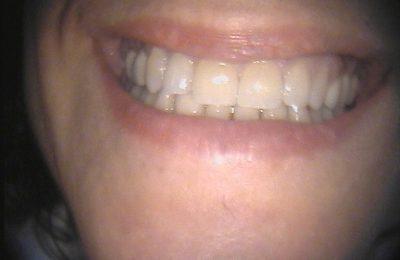 Odontoiatria estetica: caso 1 - Dopo © Dott. Alessandro Negri