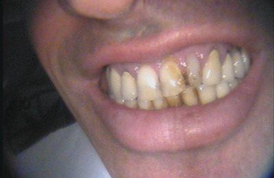 Odontoiatria estetica: caso 3 - Prima © Dott. Alessandro Negri