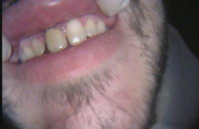 Odontoiatria estetica - Caso 2 / 2 Prima © Dott. Alessandro Negri