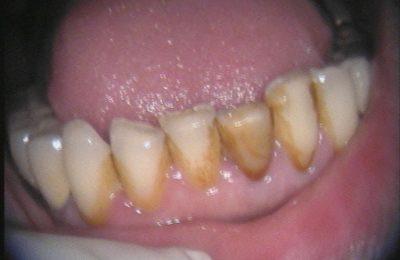 Odontoiatria Estetica Caso 3-02 Prima © Dott. Alessandro Negri