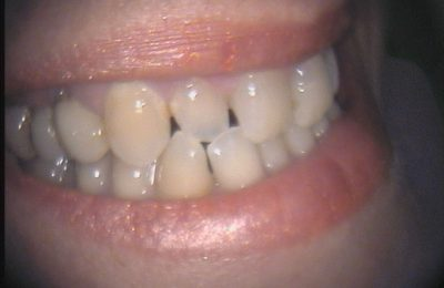 Odontoiatria Estetica Caso 1/02 Prima © Dott. Alessandro Negri